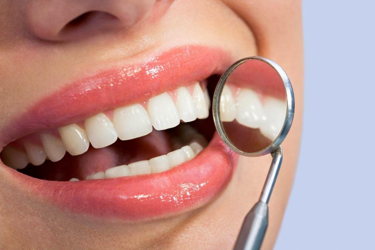 Clareamento Dental A Laser Ou Caseiro