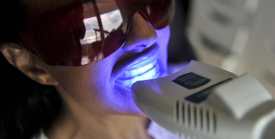 Clareamento dental irrita a gengiva?